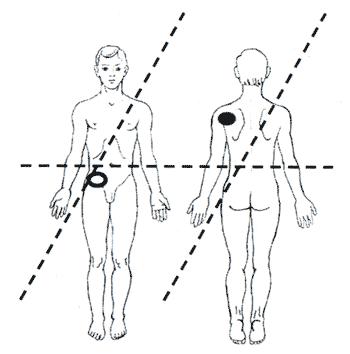 Болевые точки и точки терапии